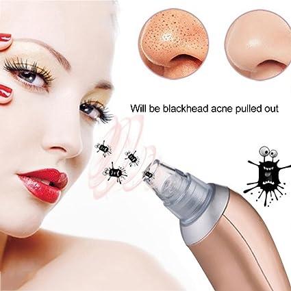 Blackhead Remover Aspirador de poros faciales eléctrico Blackhead Aspirador de succión, limpiador facial de poros y