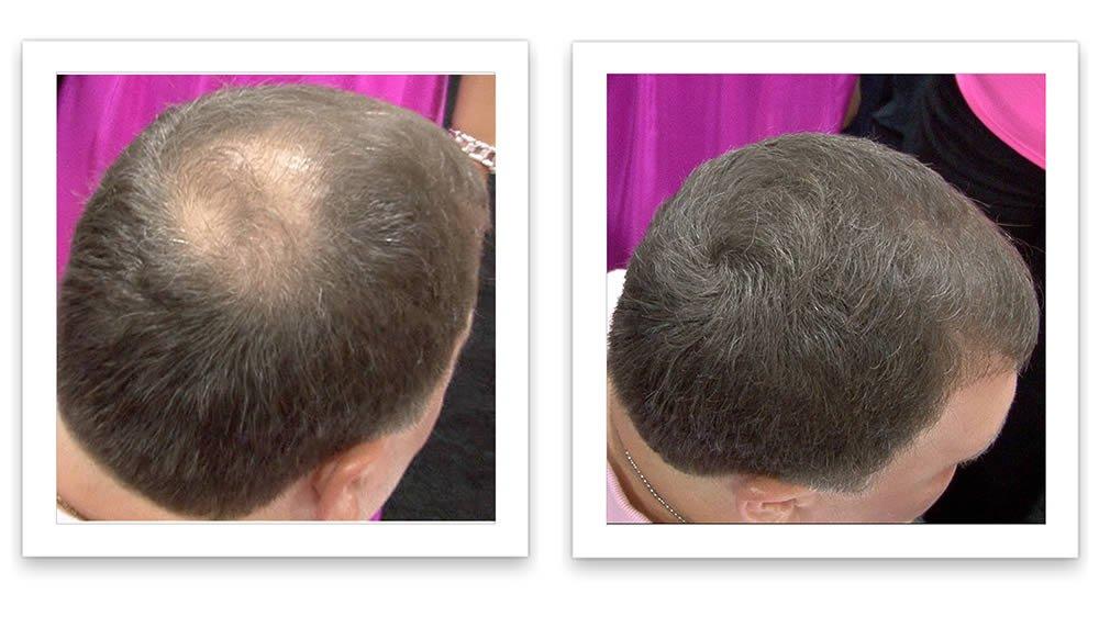 Caboki Hair Loss Concealer Trial Pack (Black)