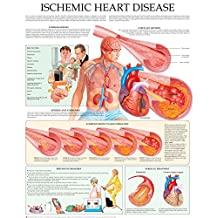 Ischemic heart disease e-chart: Quick reference guide
