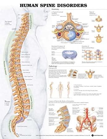 Amazon Anatomical Chart Co Human Spine Disorders Laminated