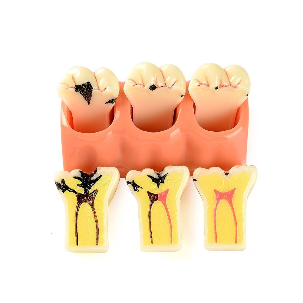Easyinsmile 4 Times New Dental teeth model Patient Education Model Caries Disassembling tooth model