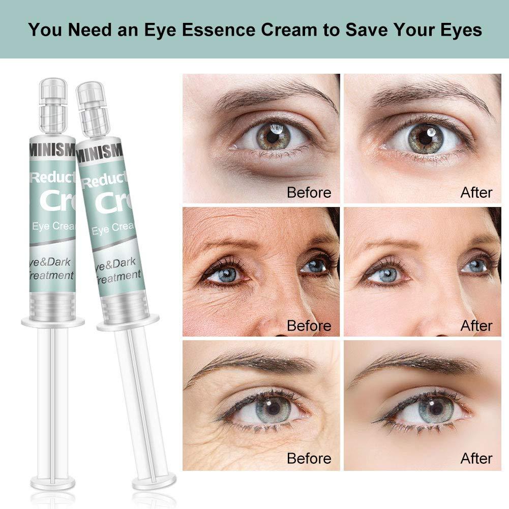 Crema para ojos,Antienvejecimiento,Crema para ojos, Crema para ojos, Crema antiarrugas,Crema hidratante para ojos para eliminar el edema, reducir ...