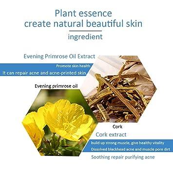 Acné 30g que quita la crema del tratamiento del acné que elimina la marca de la espinilla del erradicación: Amazon.es: Belleza