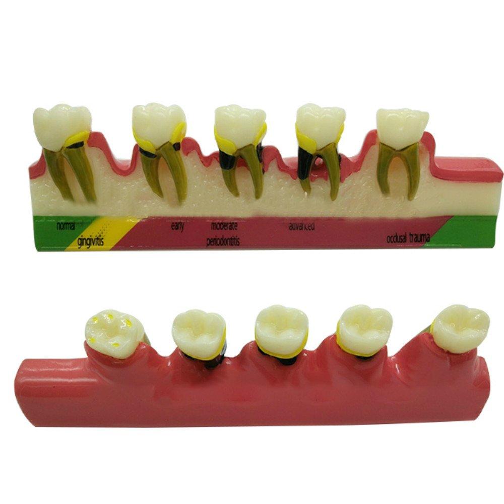 Vinmax Dental Teeth Model, Periodontal Disease Assort Tooth Typodont Teach Model Study Teaching Model