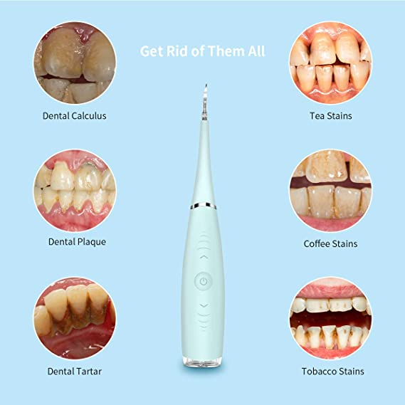 Sarro Dental, Breett Sarro Dental Electrico, Mancha Dientes Eliminación, Sarro Dental Electrico, Eliminar Placa Dental, quitar manchas dientes, 5 ...