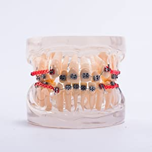 Easyinsmile Dental Orthodontic Treatment Model Teeth/Tooth/Denture Model with Braces for Dentist Studying Researching and Patient Education (Metal Bracket)