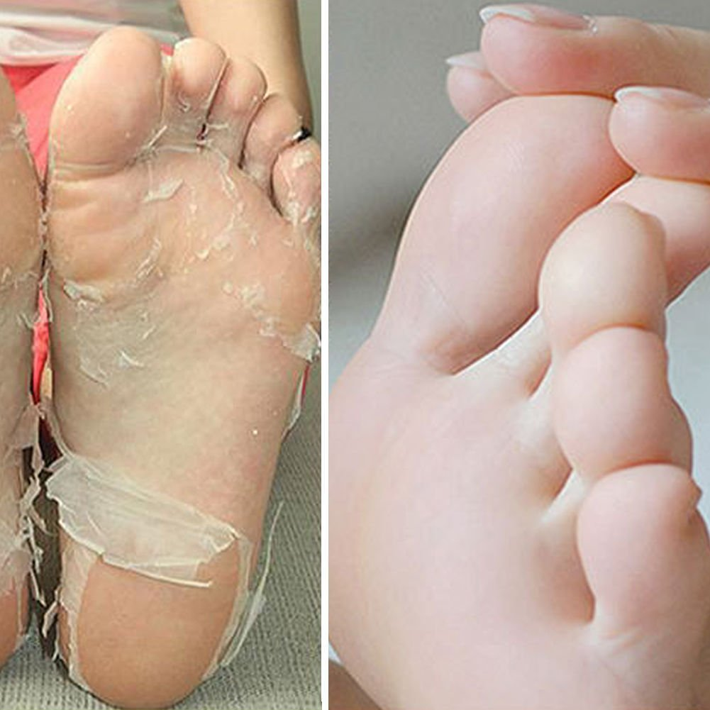 Exfoliating Peel Foot Mask Socks Remove Callus Hard & Dead Skin for Perfect Baby Soft Feet (2 Pairs) Price Perfect
