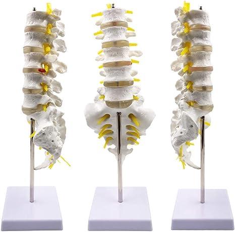 Modello Disoc Intervertebrale Malato Vertebra Lombare Umano Insegnamento