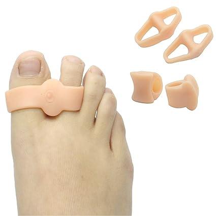 Separadores de dedos individuales y dobles para aliviar el dolor y corregir los juanetes, para