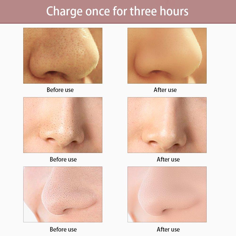 Facial Pore Cleanser, NNIUK Portátil USB Electric Pore Cleaner Massager Blackhead Acné Pimple Remover para la limpieza de la cara y el cuidado de la piel, ...