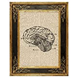 Dreamery Studio Brain Vintage Anatomy Illustration Art Print on Upcycled Antique Book Page, 8X10.5