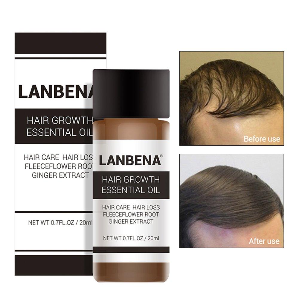 Amazon.com: Esencia de crecimiento del cabello: productos ...