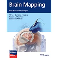 Brain Mapping: Indications and Techniques