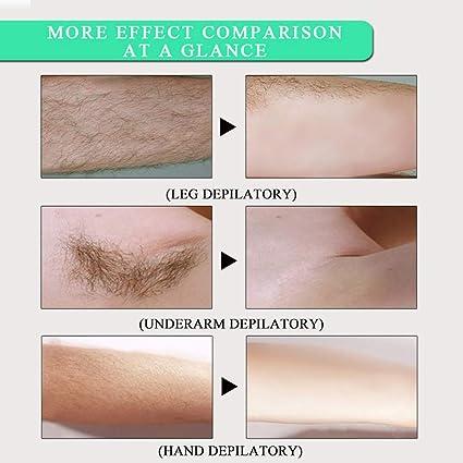 Amazon.com: Anself Crema de eliminación de cabello corporal ...