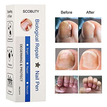 Amazon.com: Nail Fungus Treatment, Fungus Stop, Toenail Fungus ...