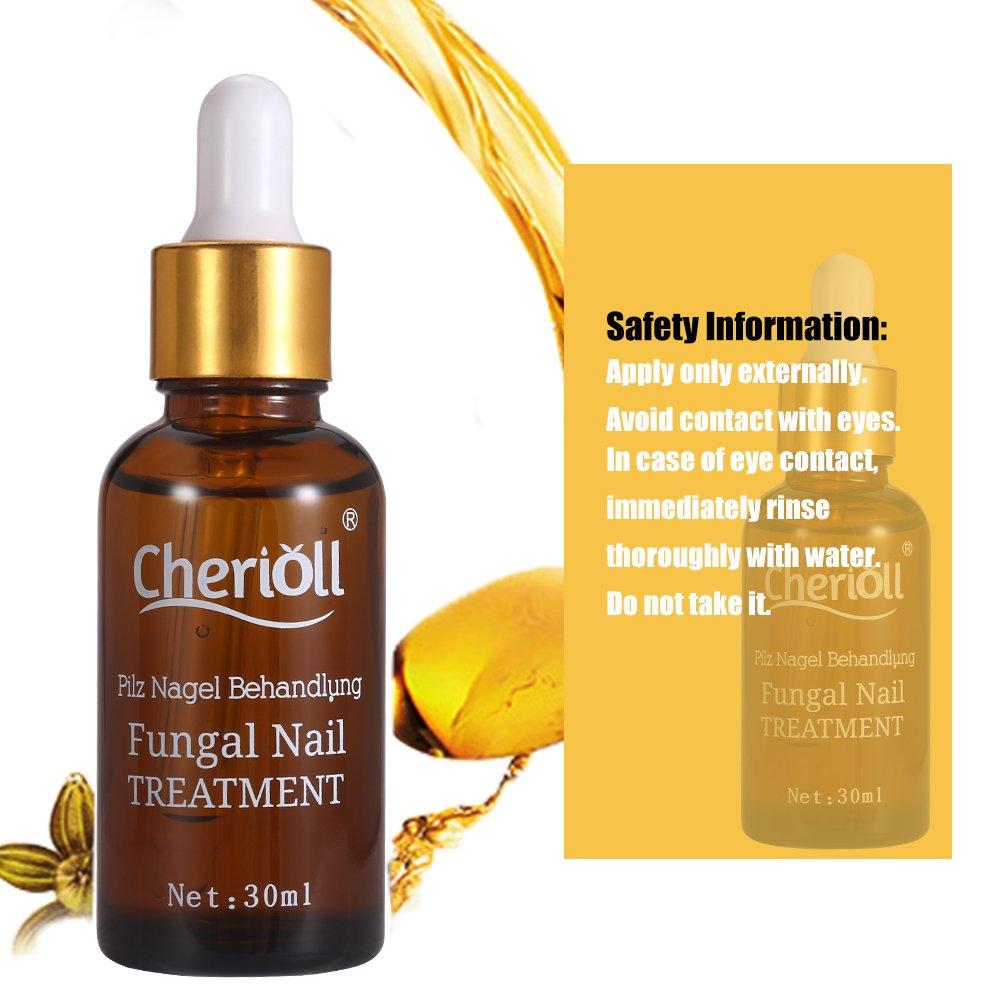 Nail Fungus Oil Nail Care,Nail Fungus Treatments,Fungus Stop,Nail Care Treatment of Anti-Fungal Solution,Effective against nail fungus 30ml by Cherioll (Image #3)