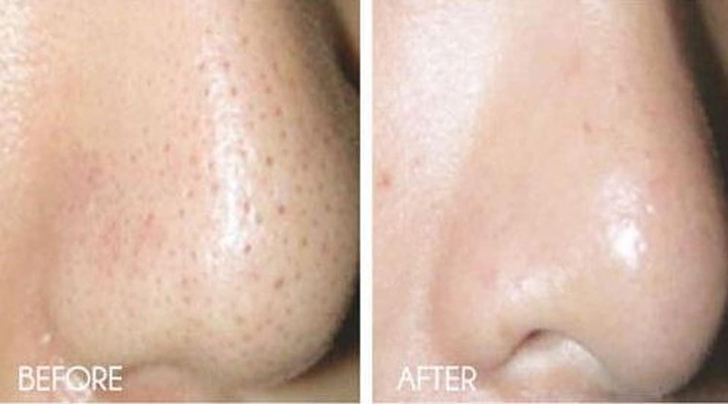 Amazon.com: Anti-Edad dermabrasion-20% Piña, Papaya Enzima ...