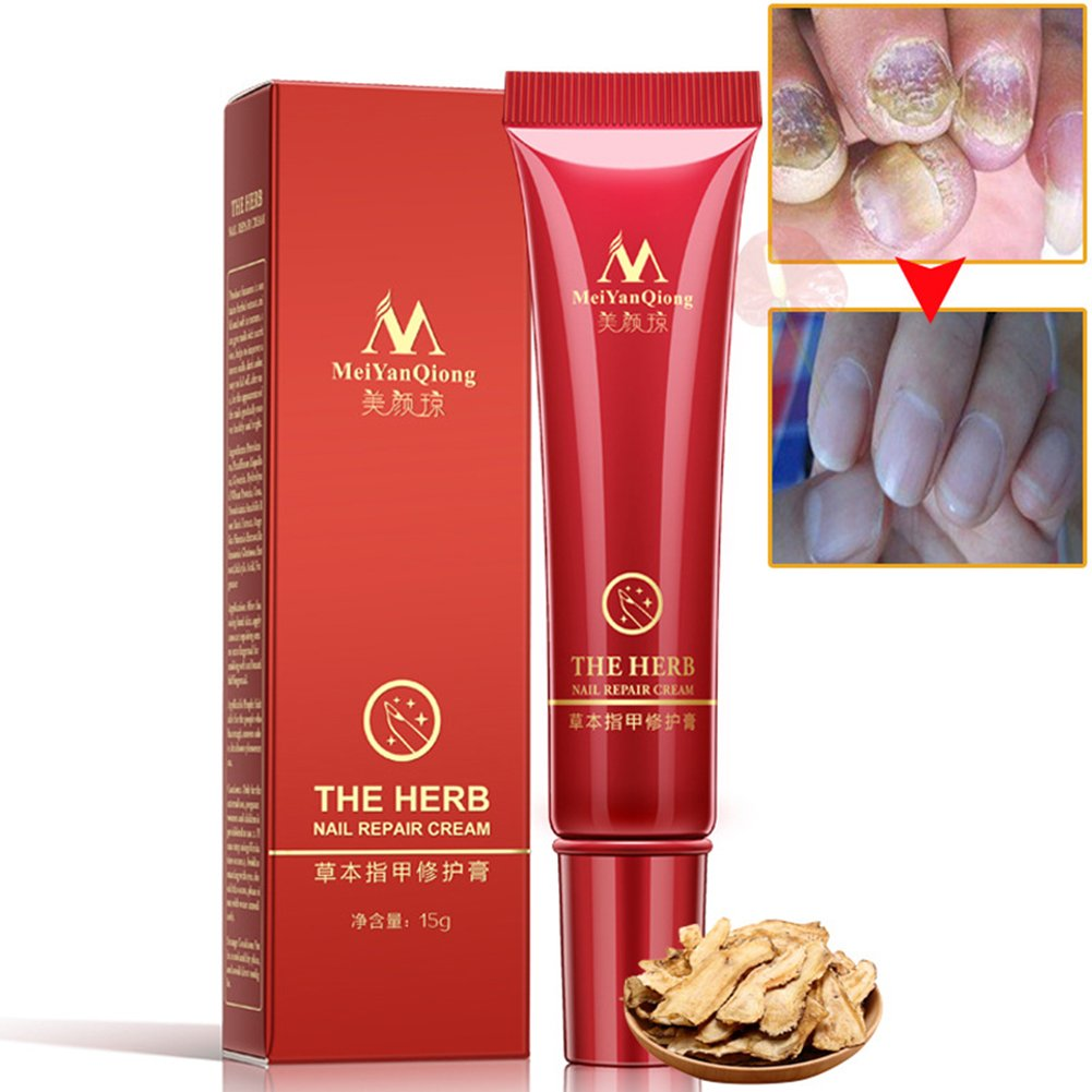 Yiwa Foot Nail Cream Protector Skin Care Cream Nail Fungus Treatment Herb Anti Fungal Nail Repair Cream
