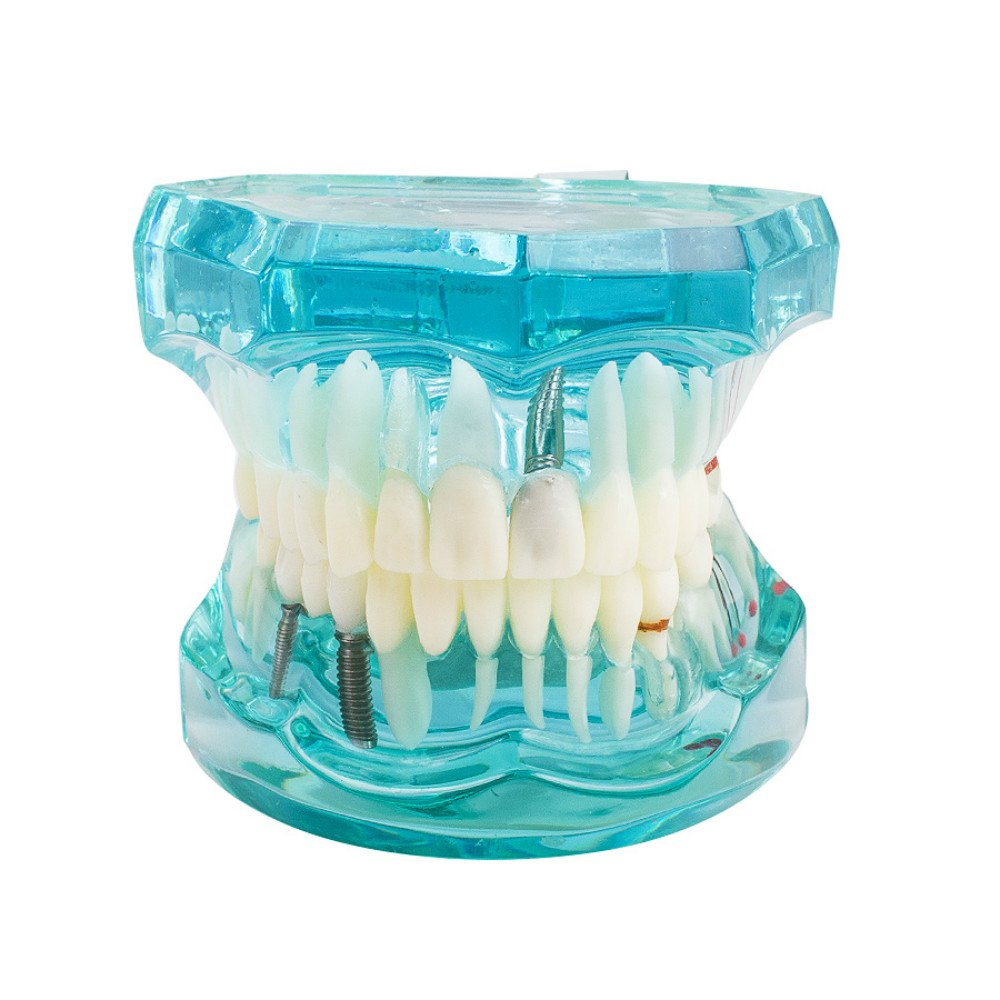 Vinmax Dental Teeth Model,Transparent Dental Implant Disease Teeth Model Dentist Standard Pathological Removable Tooth Teaching Tools for Student