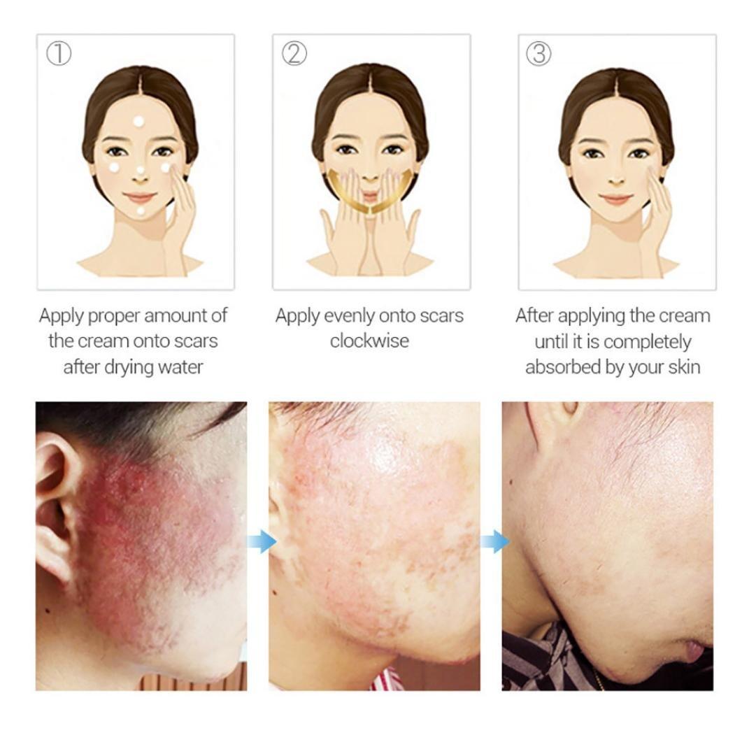 Removing Scar Ointment - Fheaven Acne Scar Removal Cream Skin Repair Face Cream Acne Spot Treatment 30ml by Fheaven (Image #7)