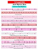 12 Lead EKG Pocket Card, , 1941004067