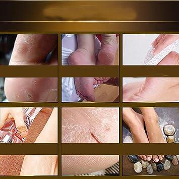 Eliminar la piel muerta Mascarilla del pie Peeling Cuticulas Pies del Talón Cuidado Antienvejecimiento por ESAILQ (Dorado): Amazon.es: Belleza