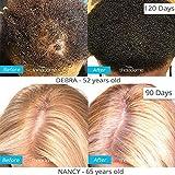 Theradome PRO Laser Hair Growth Helmet LH80 - FDA