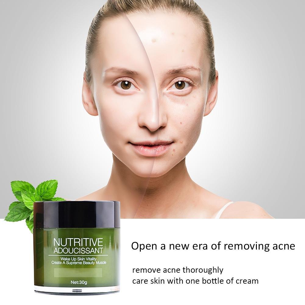 Arvin87Lyly Hidratante Hidratación Crema Facial Tratamiento para el Acné Crema Gel Antiacné Crema Nutrición De Piel Crema Reduce Granos y Puntos Negros ...