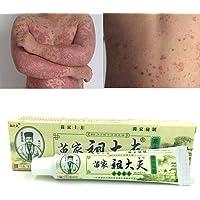 nulala 15g Psoriasis Dermatitis Eczema Tratamiento Anti Bacterial Piel Hongo Crema a base de hierbas Ungüento, Cura natural Psoriasis ungüento
