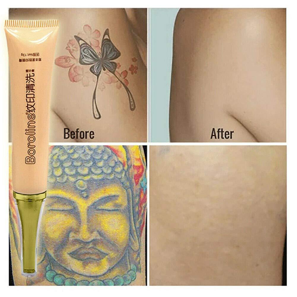 YOJINKE - Limpiador permanente de tatuajes para eliminar tatuajes ...