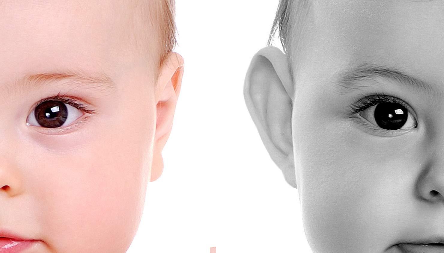 Otostick® Bébé correcteurs esthétiques pour oreilles décollées. Innovaciones  Disras SL 24e6ee01647