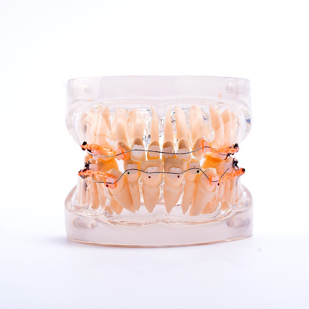 Easyinsmile Dental Orthodontic Treatment Model Teeth/Tooth/Denture Model with Braces for Dentist Studying Researching and Patient Education (Ceramic Bracket)