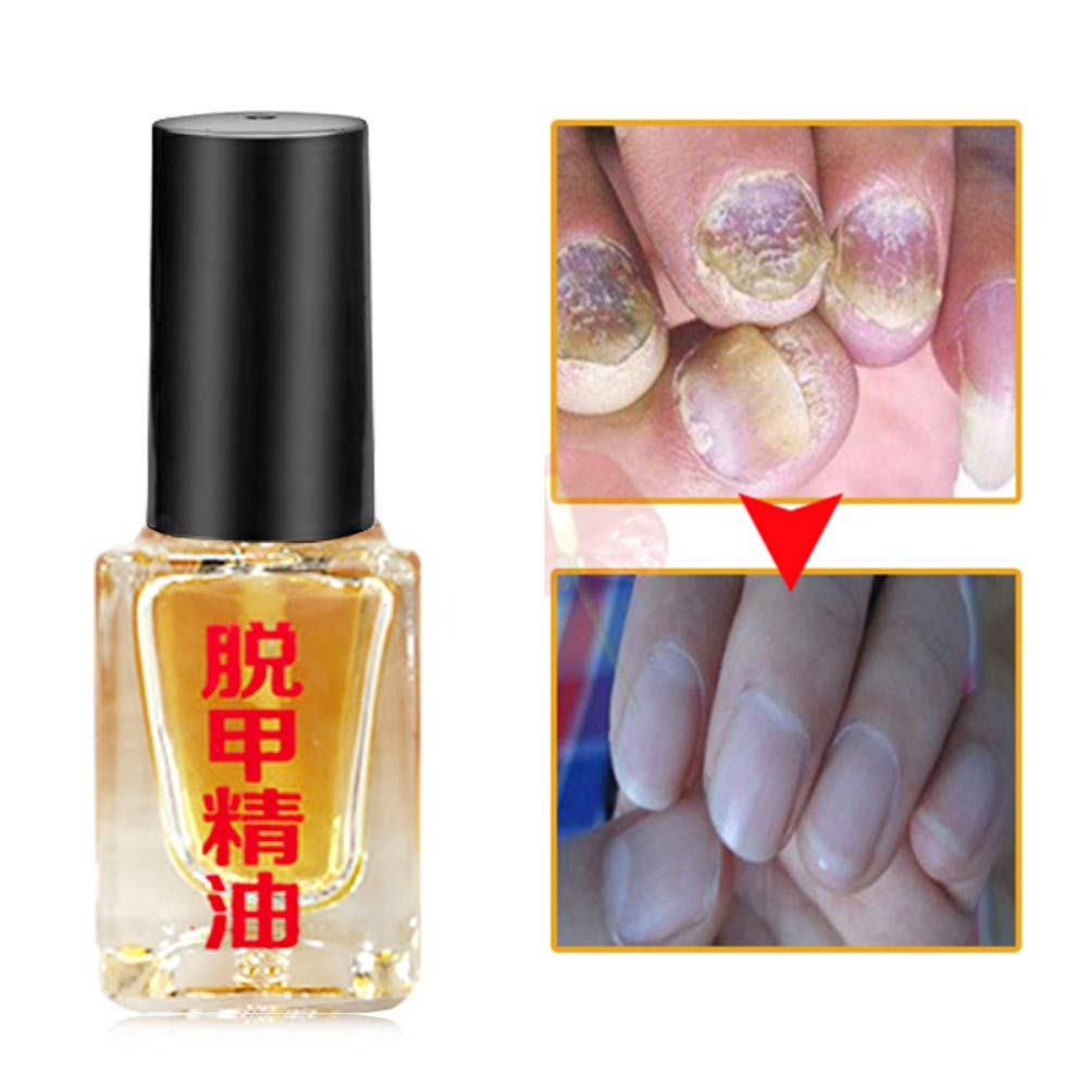 Anti fungal Nail Treatment Solution - Kills Fungus Antifunga on Toenails & Fingernails, Solution Repairs 5ml