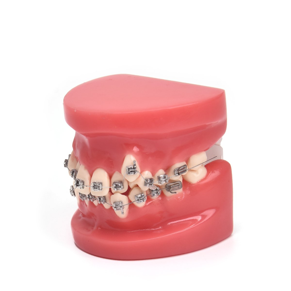 Annhua Dental Orthodontic Model Teeth Treatment Model with Metal Bracket Arch Wire Buccal Tube Ligature Ties