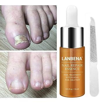 Ruier-hui Tratamiento de reparación de uñas, 15Ml Reparación de uñas Cuidado de uñas