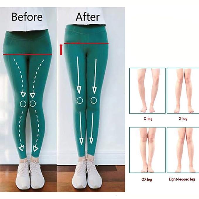 Xiao Jian- Ortesis para piernas: Tipo Xo correcto Alineador ...