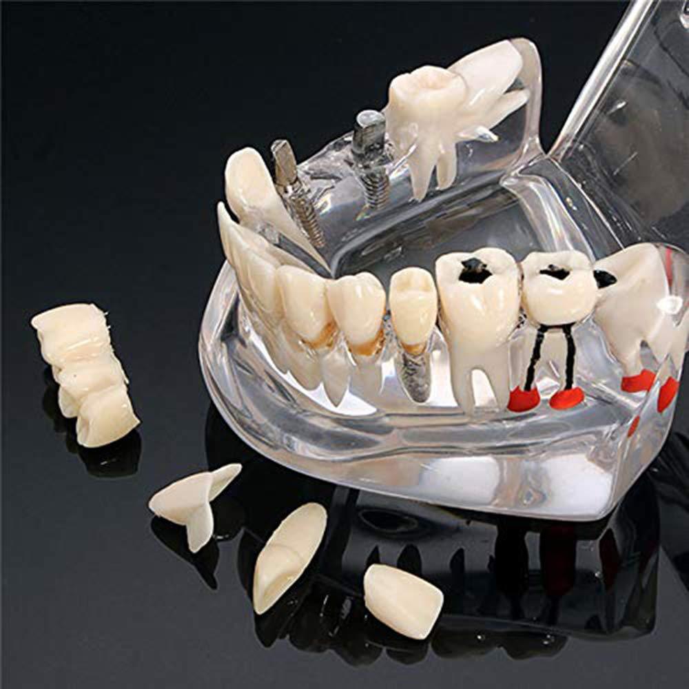 Dental Demonstration Z/ähne Modell Transparent Adult Pathologies Dental Zahnarzt Oral Repair Pathologische Active Tooth-Modell f/ür die medizinische Wissenschaft Lehre Forschung