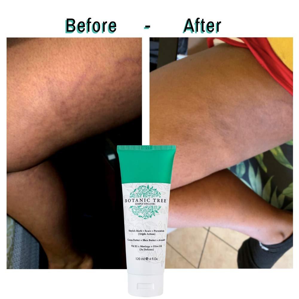 Amazon Com Stretch Mark Cream Removal Buy 1 Get 1 Natural