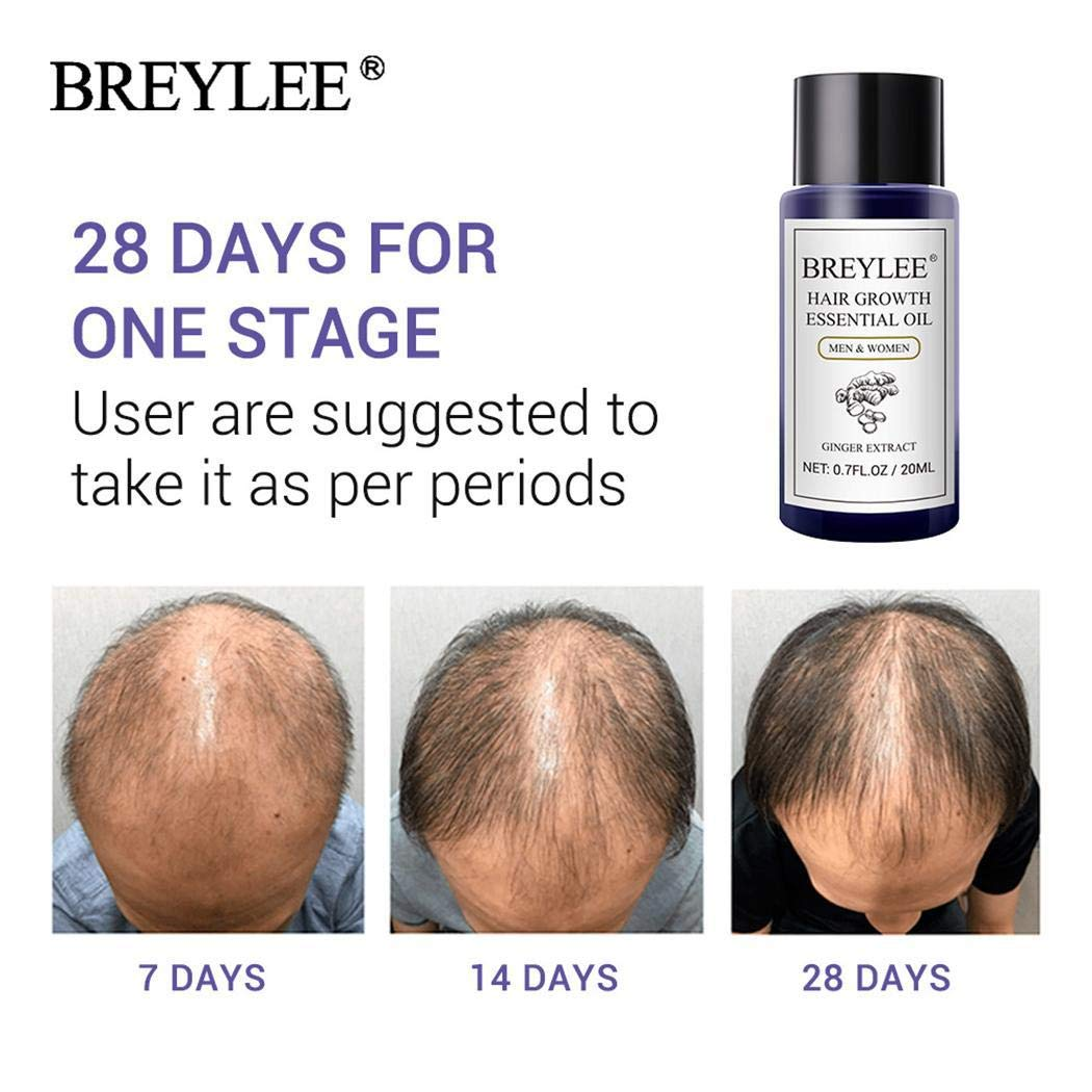 Roojer Moisturizing Damaged Hair Repair Growth Essence Treatment Oil Hair Regrowth Treatments