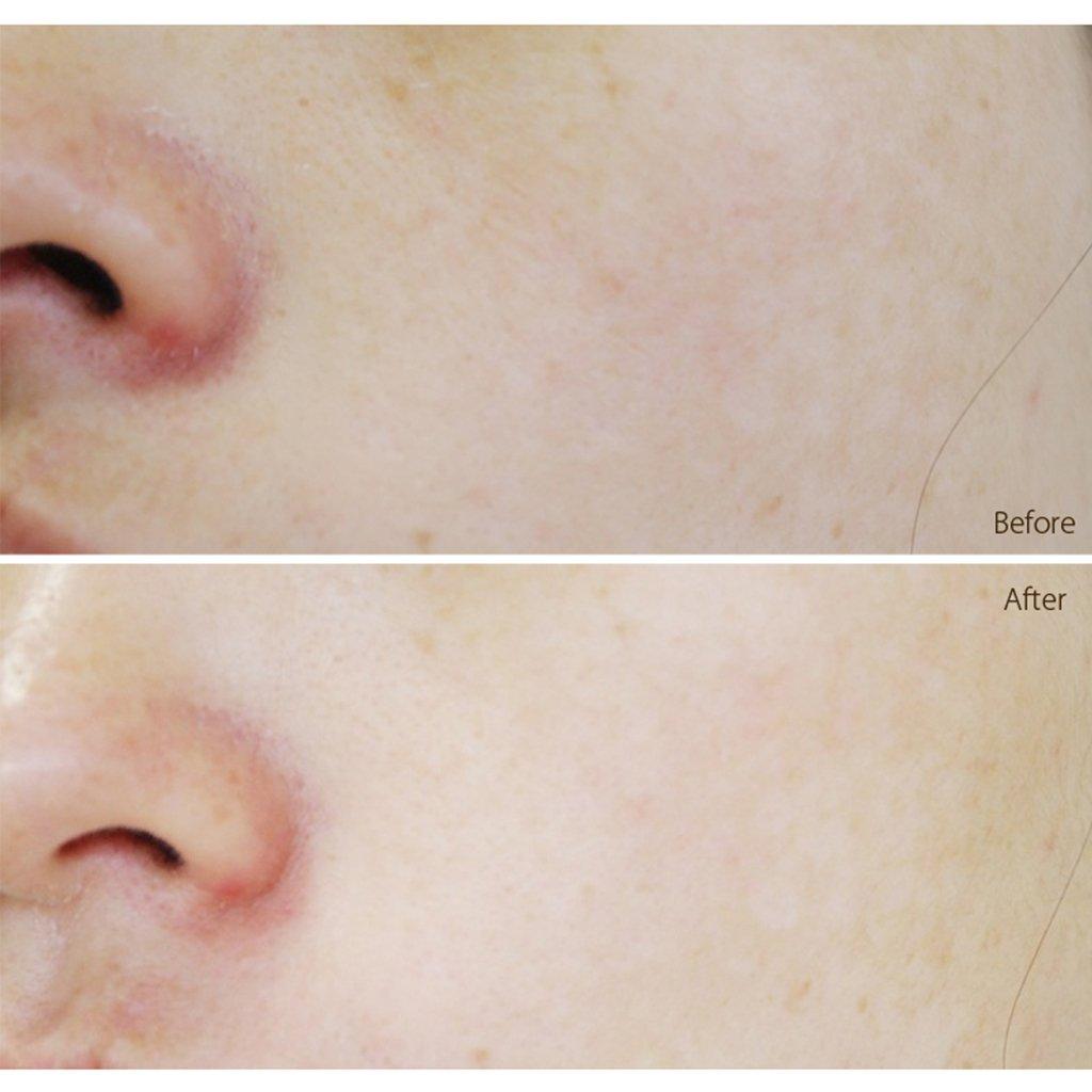 Secret Key Starting Treatment Aura Mist Beauty Essence 7 Ml