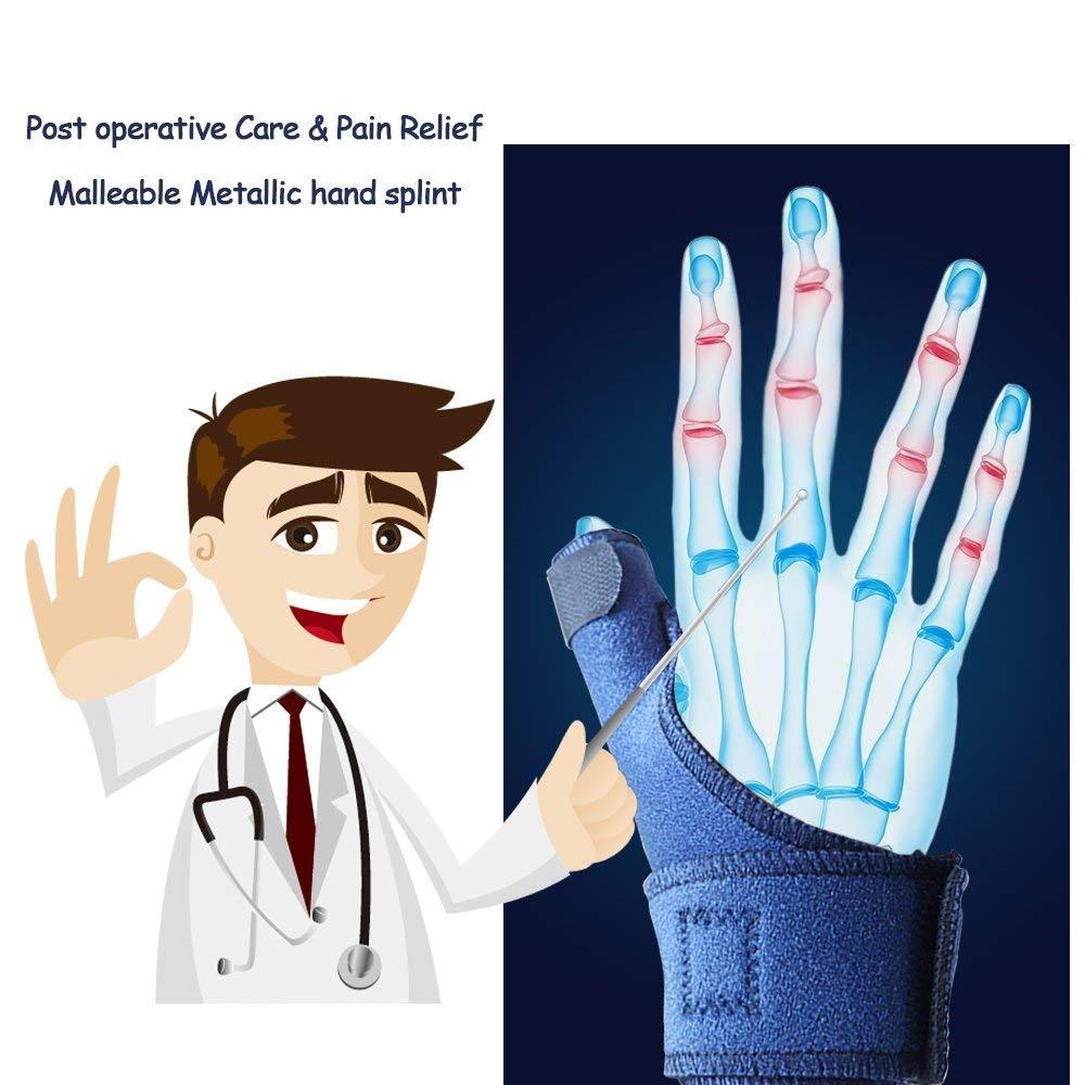 Primäre Behandlung von offenen Strecksehnenverletzungen der Hand