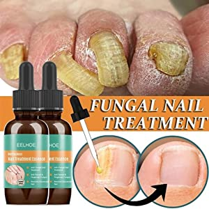 BSOA 30ml Nail Fungal Liquid Anti Fungal Nail Solution for Finger and Toe Nails