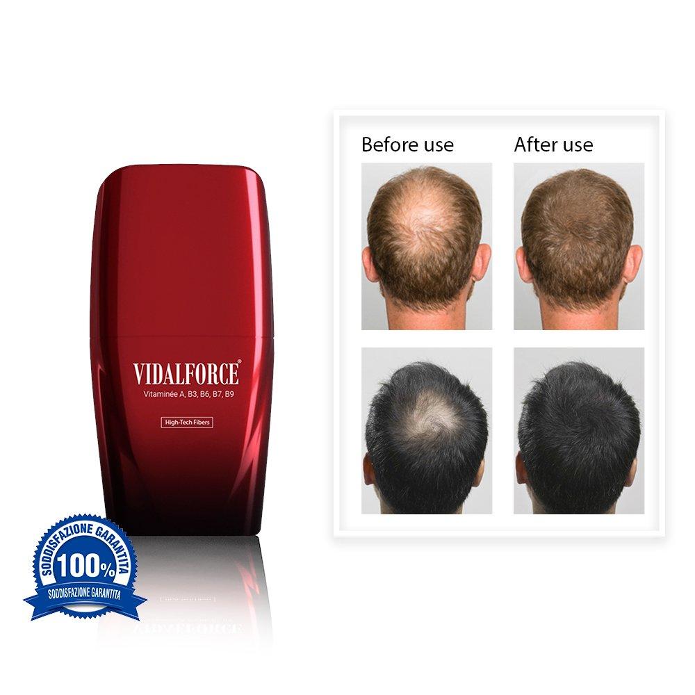 VidalForce Fibras Capilares Naturales Gris Claro 25 gr Engrosador y voluminizador de cabello: Amazon.es: Belleza