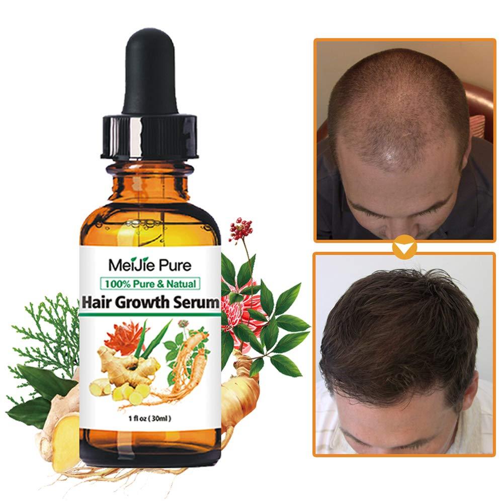 Hair Growth Serum,2019 Hair Growth Treatment,Hair Serum,Anti Hair Loss, Thinning, Balding, Repairs Hair Follicles, Promotes Thicker, Stronger Hair , And Promotes Hair Regrowth