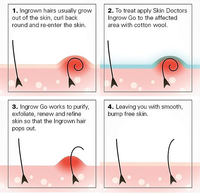 Skin Doctors Ingrow Go - Loción para eliminar los vellos, 120 ml
