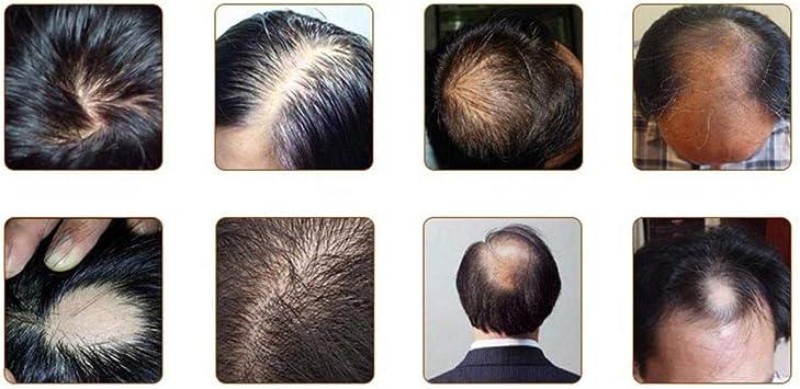 Aceite de crecimiento del cabe: Amazon.es: Belleza