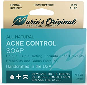 Marie's Original Acne Bar Soap Cleanser for Face and Body | Homeopathic Acne Treatment with Organic Oat Bran, Sassafras Album, Noni Fruit Powder, White Willow | Natural Body Wash for Pimples and Scars
