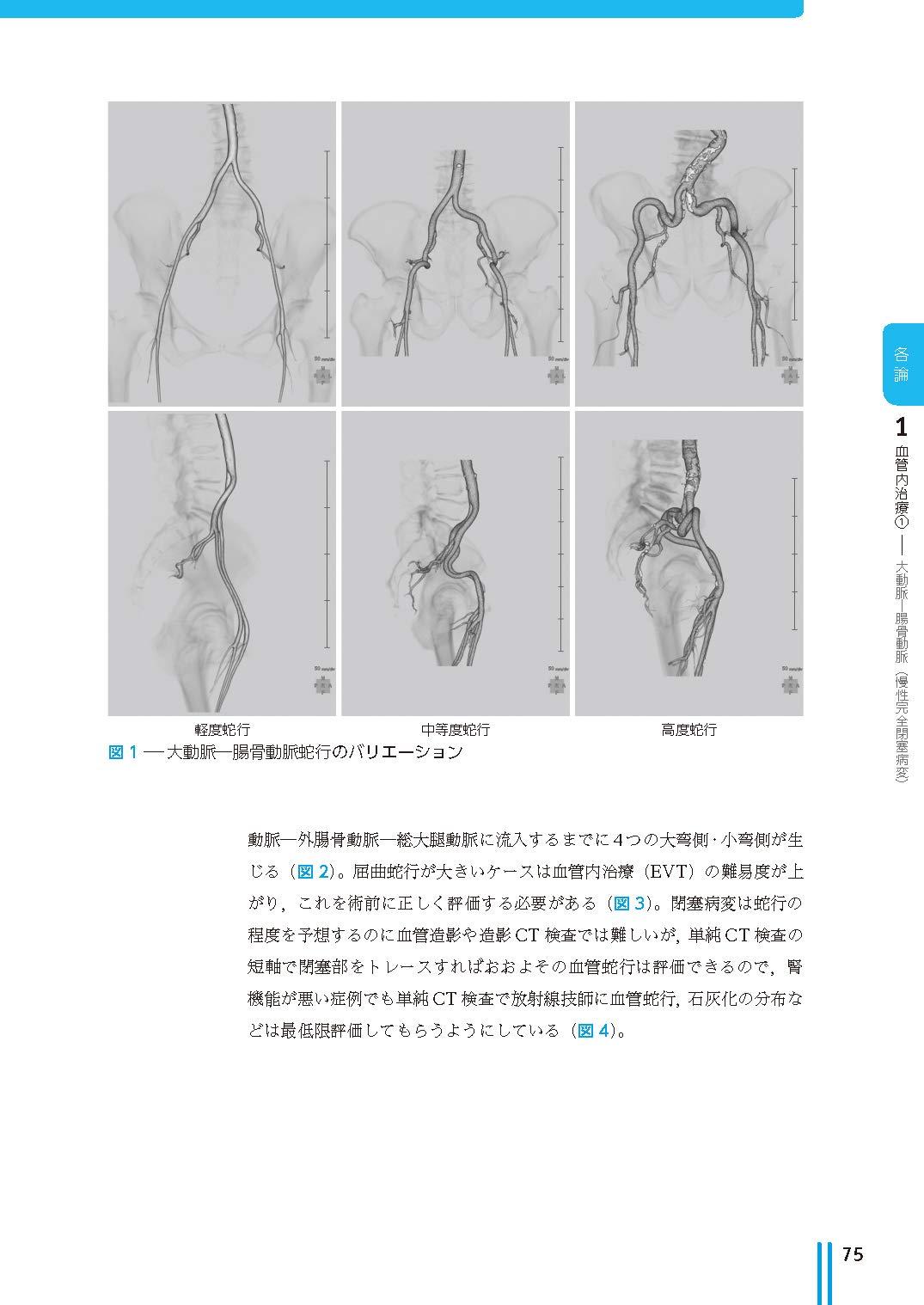 動脈 硬化 症 閉塞 性