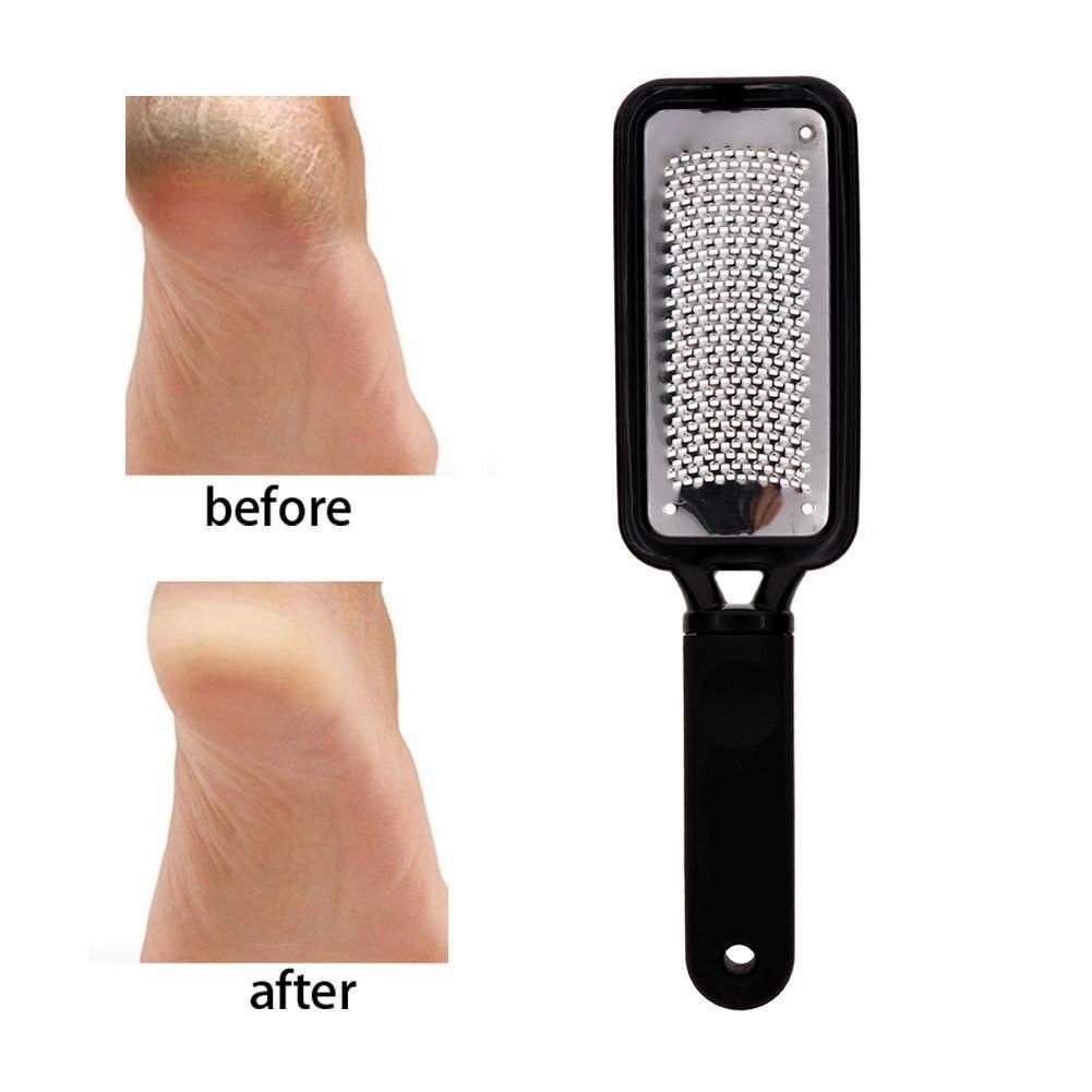 farbenme Laser callos escofina, Premium Acero Inoxidable archivo Callus Remover, profesional del pie Scrubber–Repair & Smooth Cracked seca grueso pies para hombres y mujeres, Negro