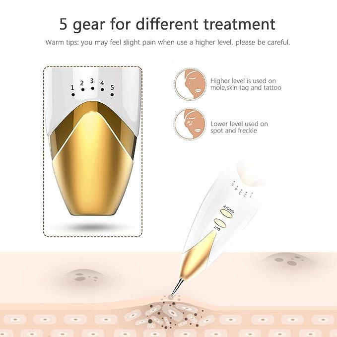 Freckle rimozione,Macchie Viso Rimozion,Breett Spot Eraser Pro ...